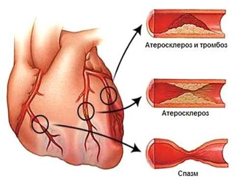 Реферат на тему атеросклероз головного мозга